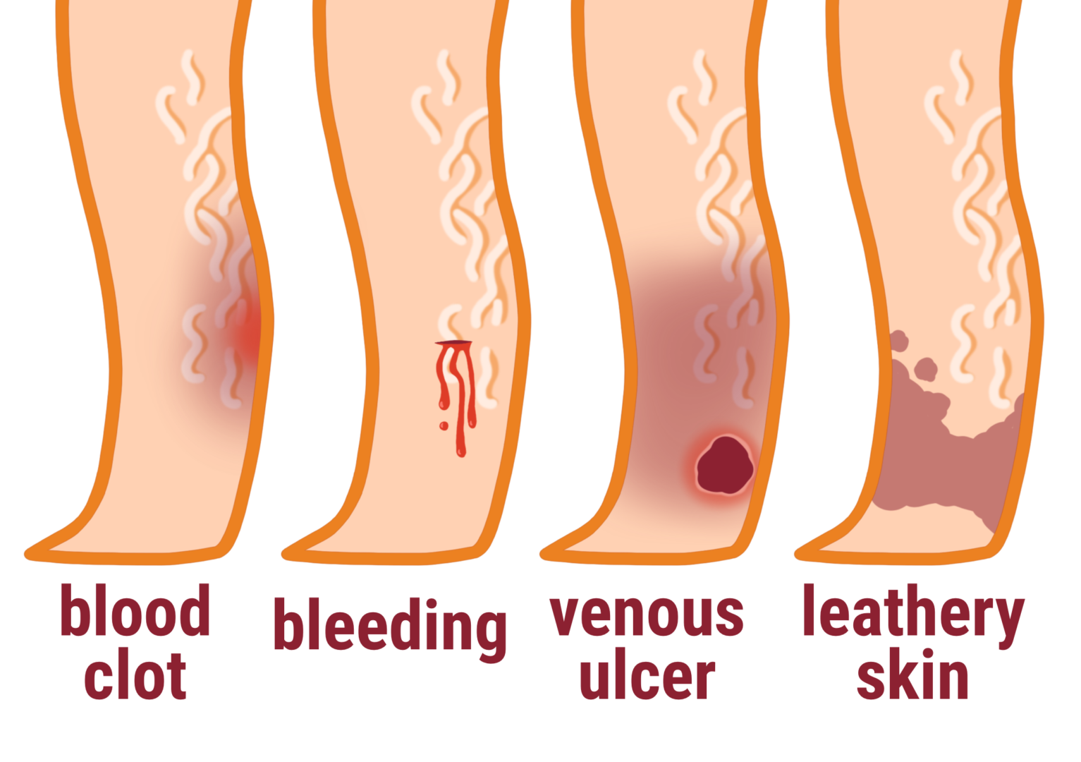 untreated varicose vein complications