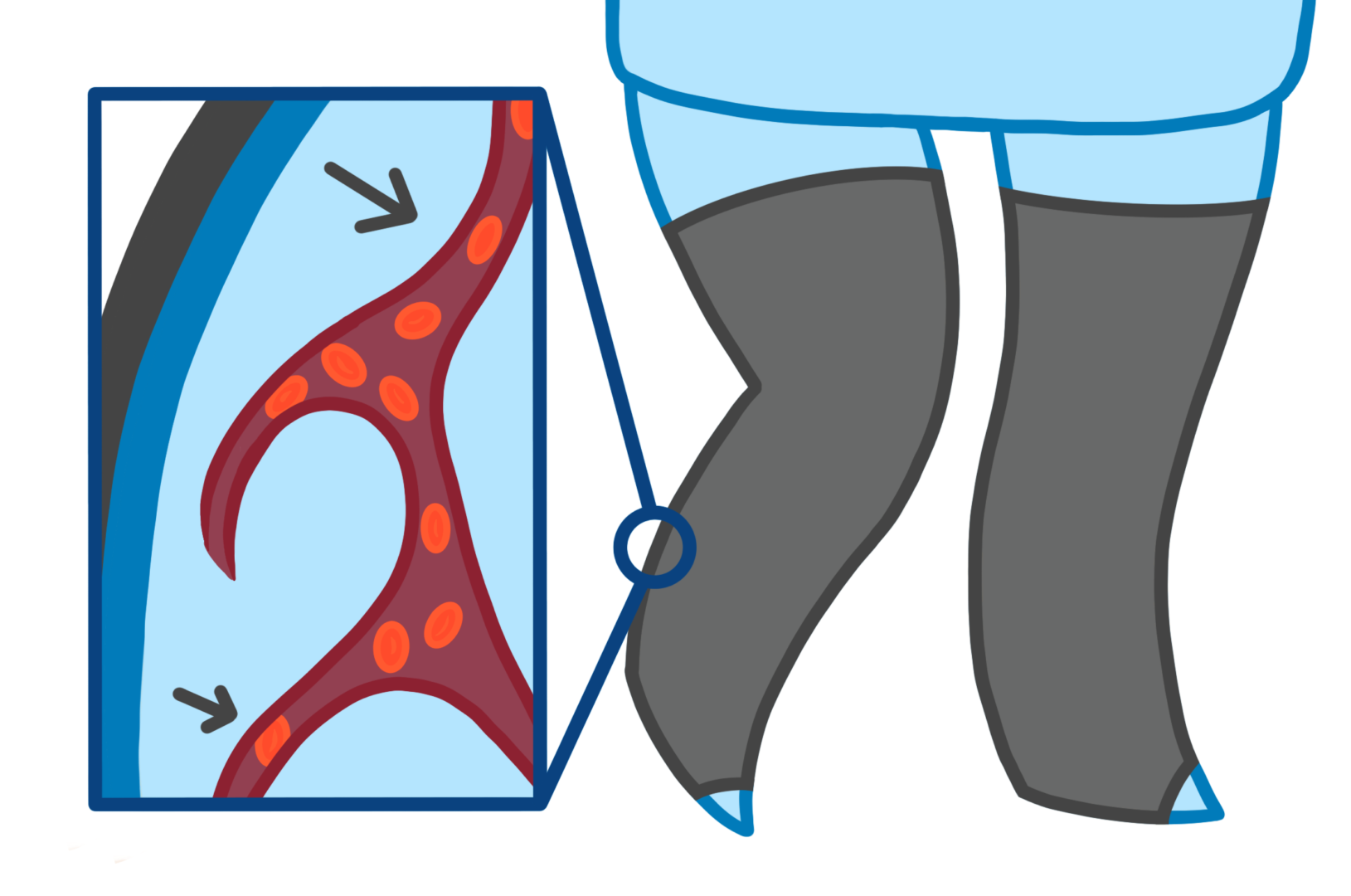 legs with compression stockings for varicose veins