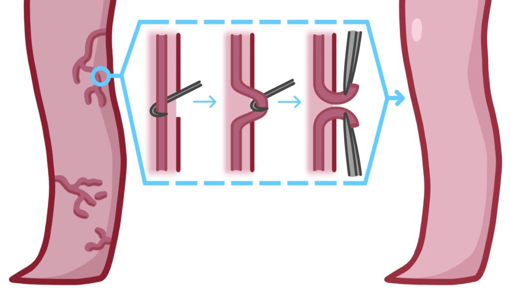 ambulatory phlebectomy illustration diagram