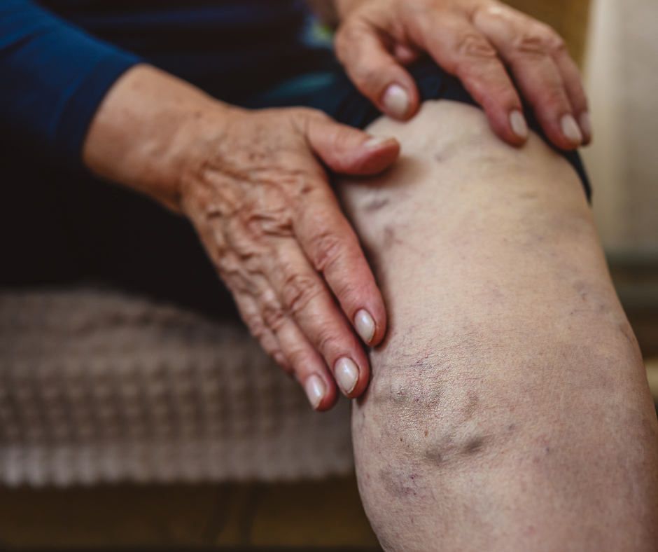 can varicose veins come back after treatment?