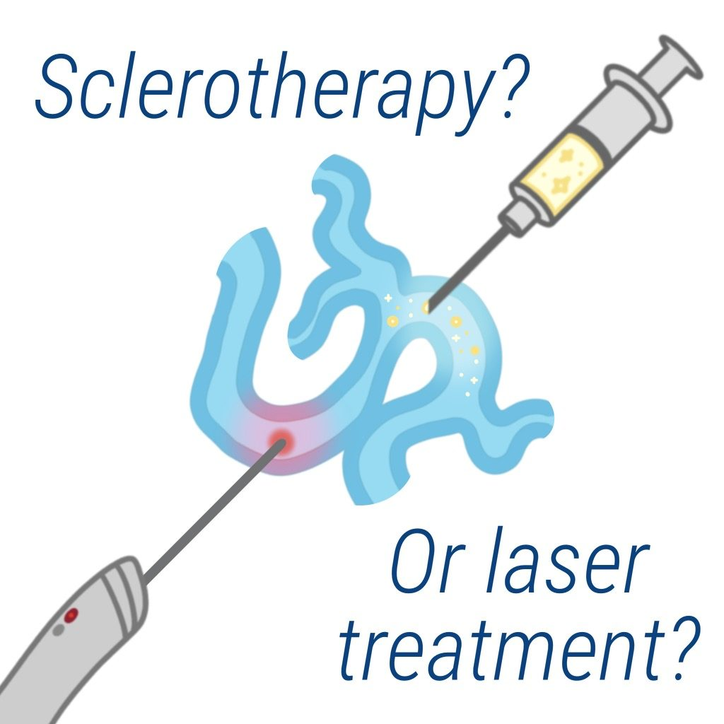 sclerotherapy versus laser therapy vein treatment