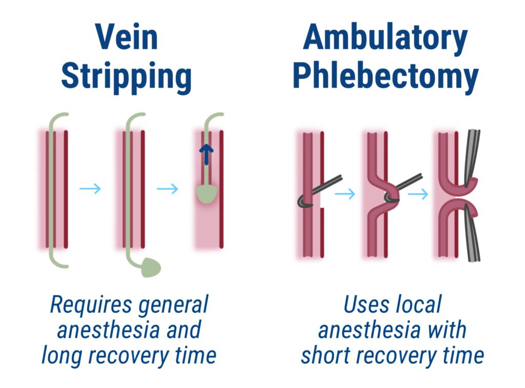 vein stripping versus ambulatory phlebotomy for varicose veins